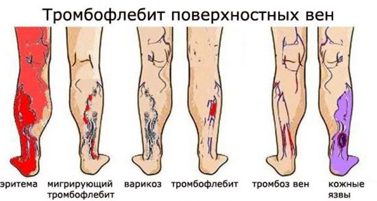 Тромбофлебит - симптомы, лечение, операция, признаки, причины