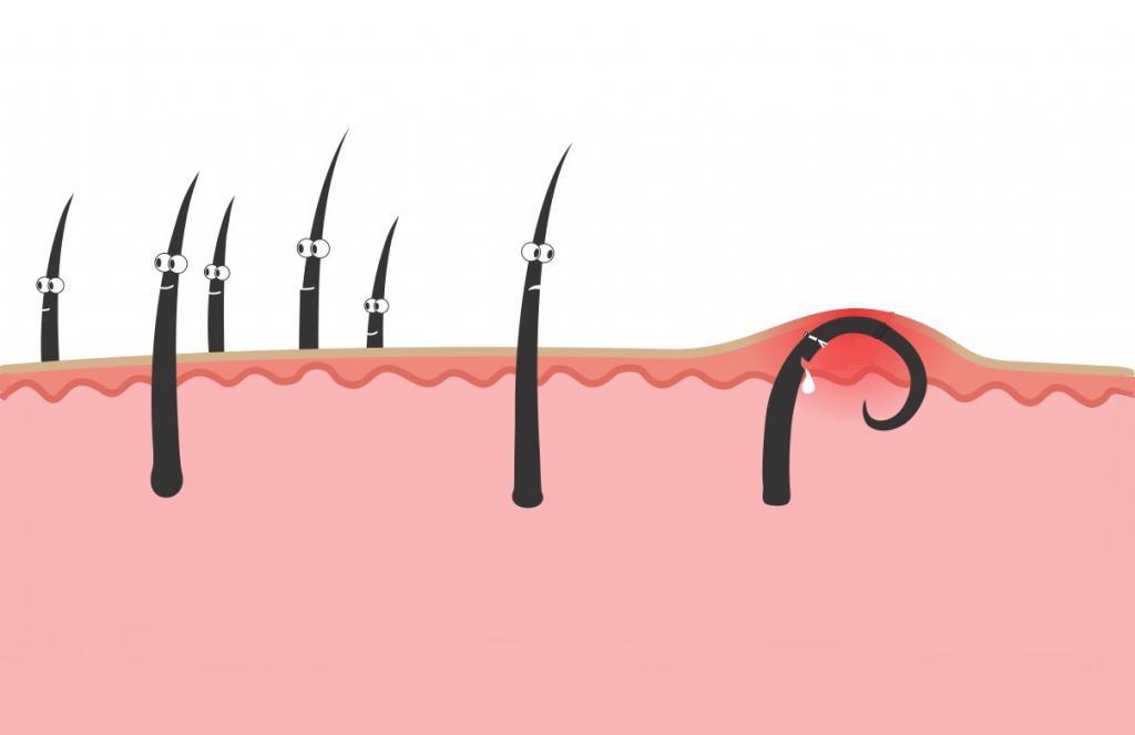 Салициловая кислота от вросших волос: отзывы и применение