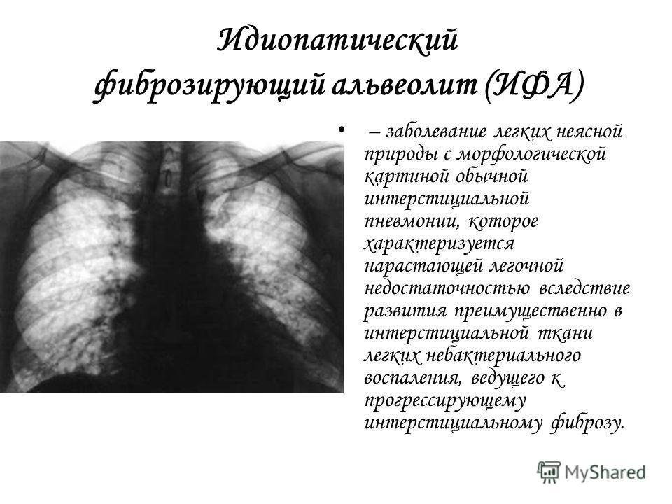 Симптомы фиброзирующего альвеолита и признаки болезни