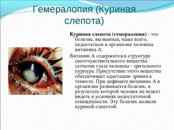 Куриная слепота (гемералопия): симптомы и лечение
