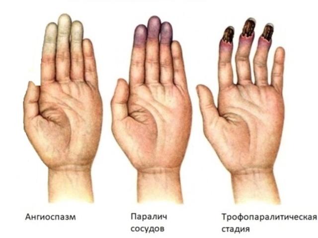 Синдром рейно причины лечение