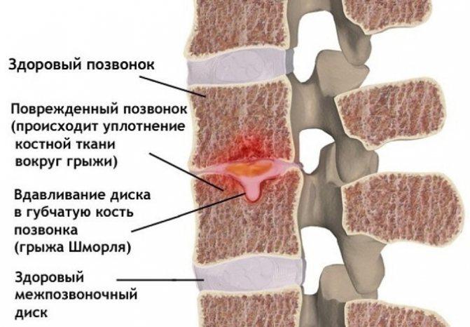 Грыжа шморля грудного отдела позвоночника