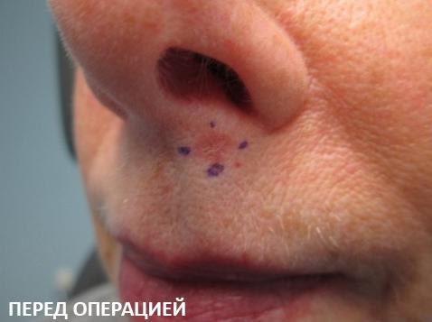 Базалиома кожи носа и лица: симптомы и лечение