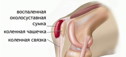Бурсит локтевого сустава: виды бурсита, причины развития и методы лечения