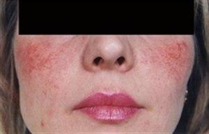 Лазерное удаление сосудов на лице: описание процедуры