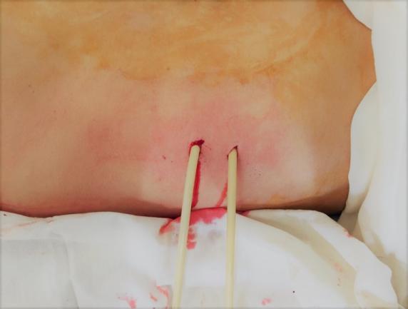 Почечная ангиомиолипома: признаки, лечение и прогноз