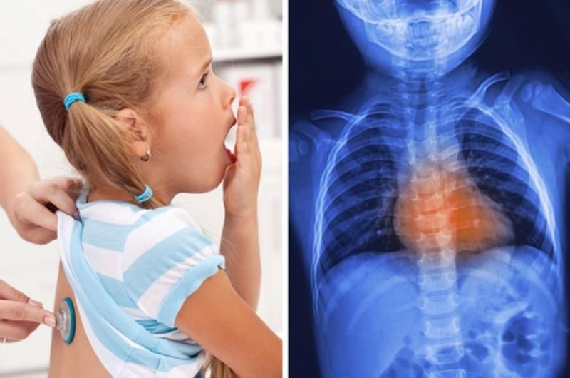 Причины, диагностика и лечение обструктивного бронхита
