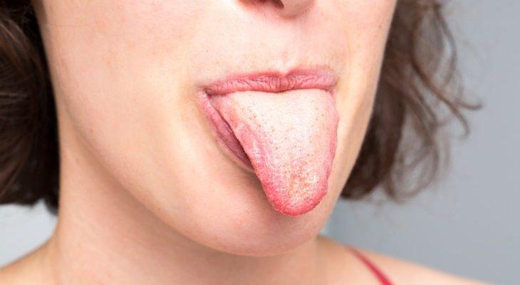 Причины желтого и коричневого налета на языке