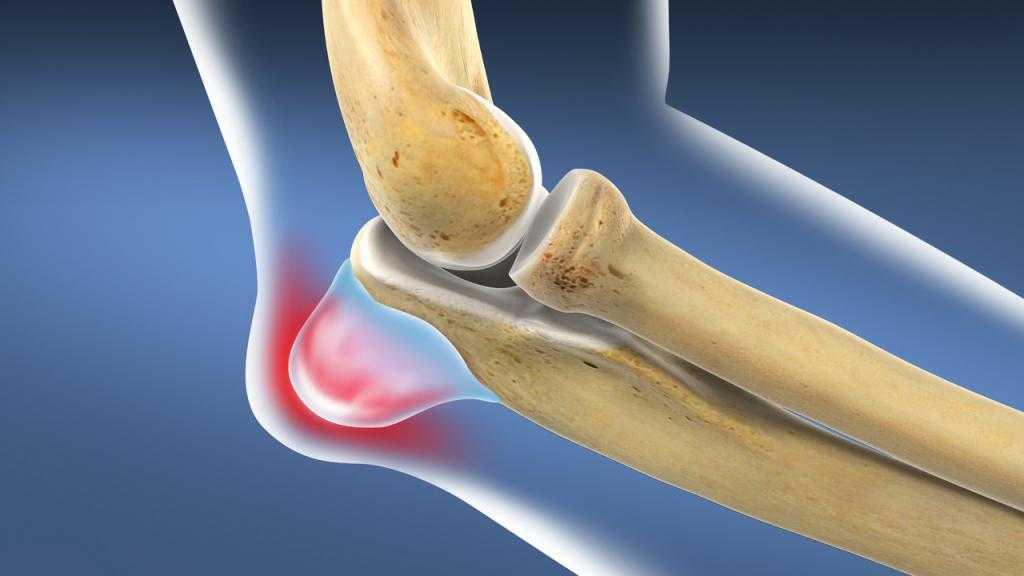 Обзор методов лечения хронического бурсита локтевого сустава: операция, физиотерапия, медикаменты