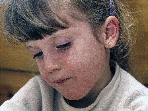 Корь. причины, симптомы, диагностика и лечение заболевания  :: polismed.com
