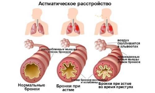Бронхиальная астма как психосоматическое заболевание