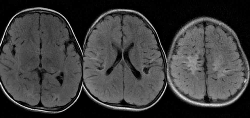 Глиоз головного мозга: причины, симптомы, лечение и прогноз