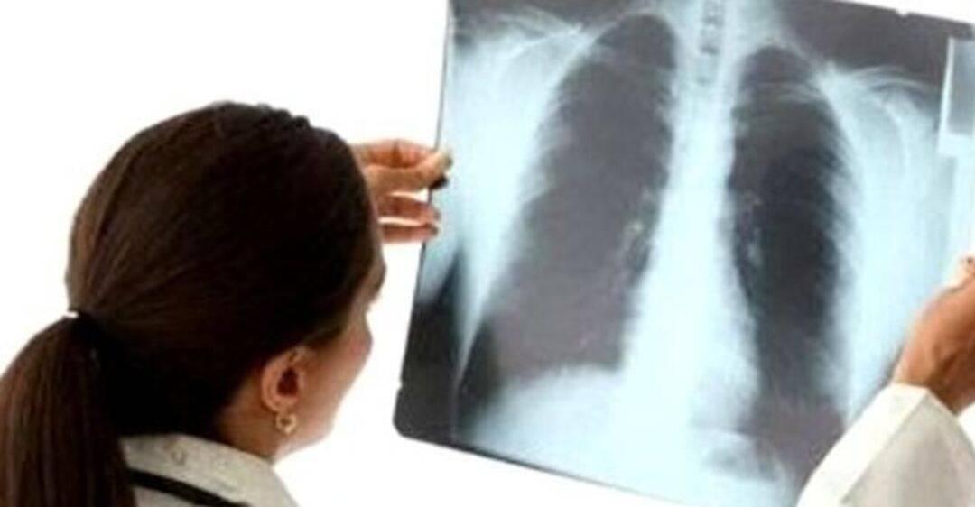 Бывает ли пневмония без температуры? пневмония без температуры и кашля