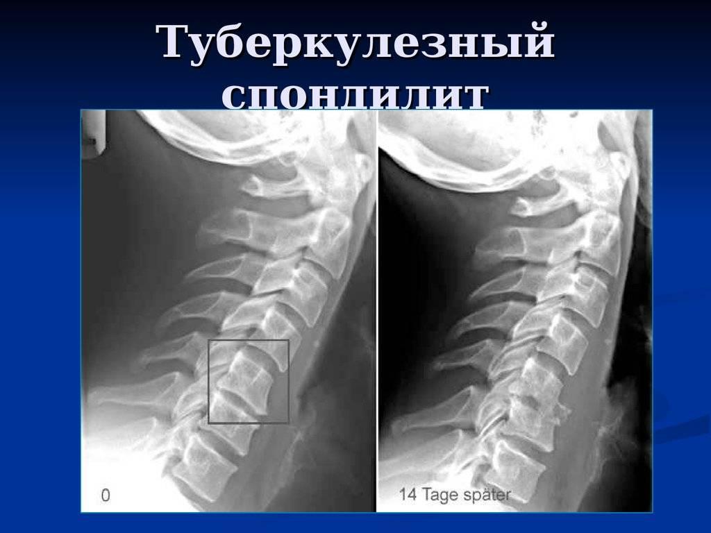 Туберкулезный спондилит позвоночника – дифференциальная диагностика, симптомы, лечение, осложнения туберкулезного спондилита