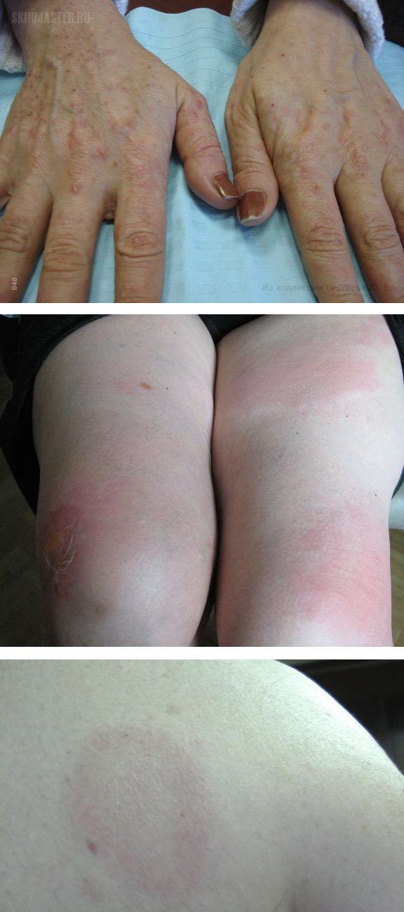 Причины, симптомы и лечение токсико-аллергического дерматита