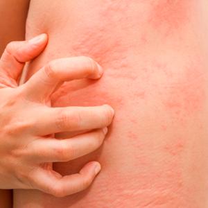Генерализованная крапивница: симптомы, первые признаки и причины, принципы лечения