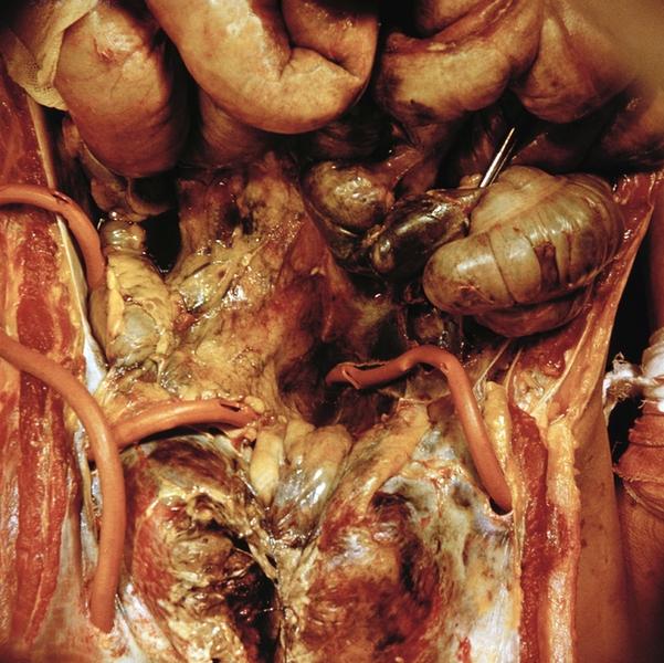 Стафилококковый дисбактериоз у грудничка лечение