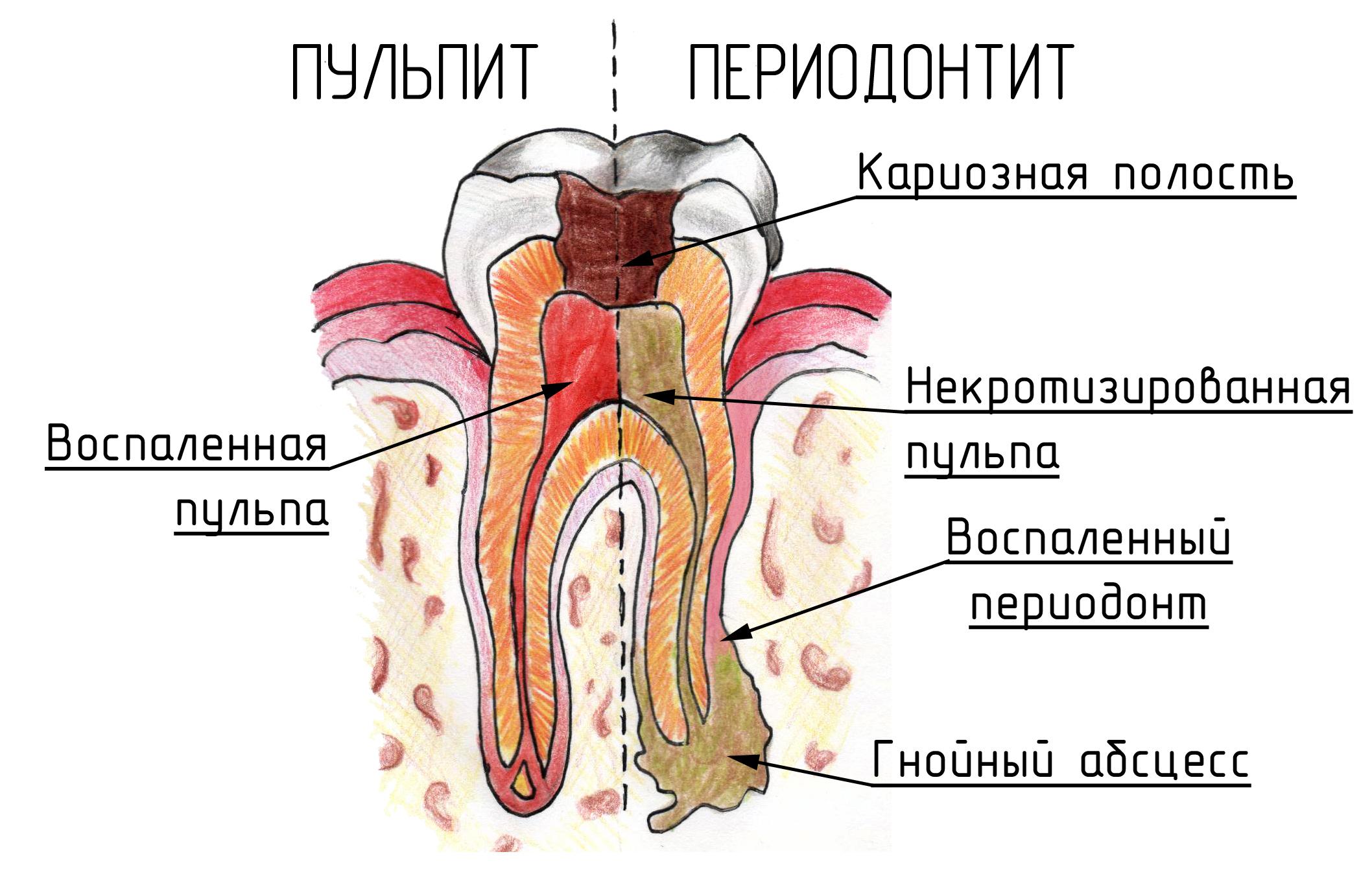 Симптомы и способы лечения хронического периодонтита