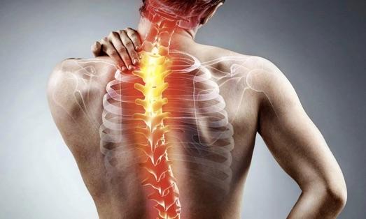 Что собой представляет и характерные симптомы спондилита позвоночника
