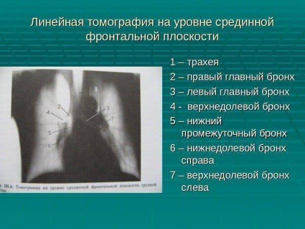 Левосторонняя верхнедолевая пневмония