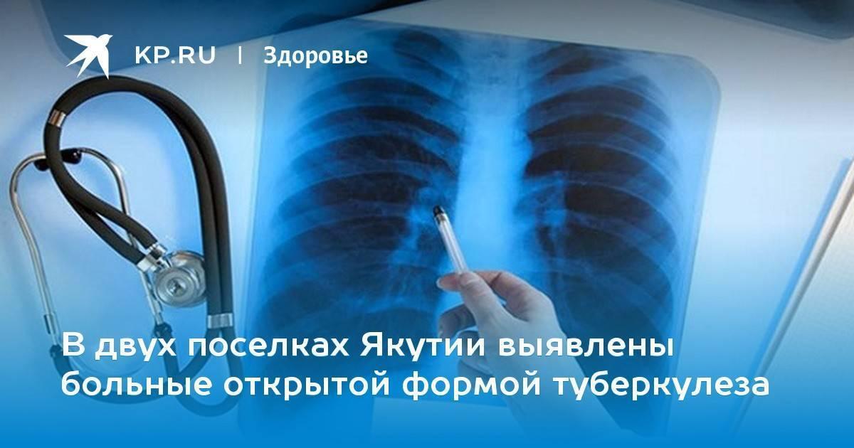 Лечится ли открытая форма туберкулеза легких. можно ли вылечить открытую форму туберкулеза