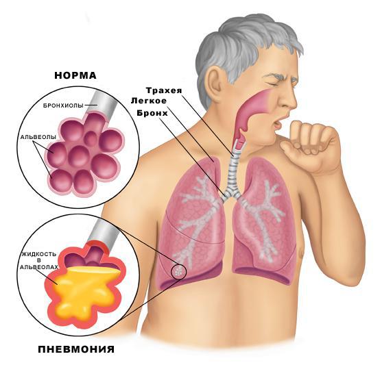 Двусторонняя пневмония: симптомы, причины, лечение. двусторонняя пневмония у детей