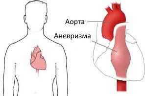 Современные подходы к диагностике и лечению аневризм грудной части аорты
