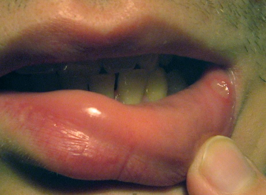 Язвы во рту: причины и лечение заболеваний
