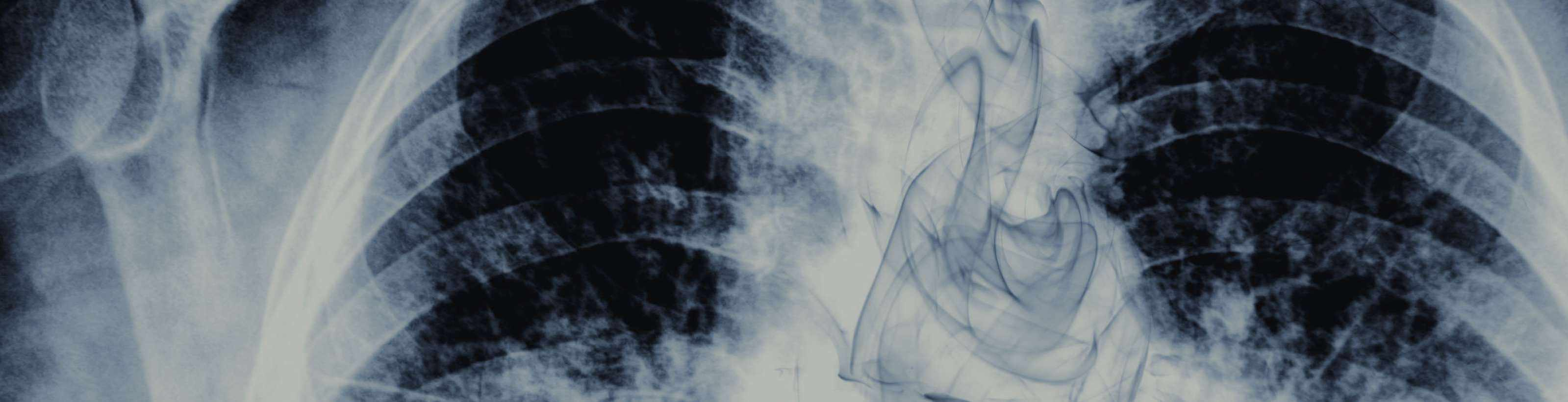 Чем опасно курение и можно ли курить при бронхите?