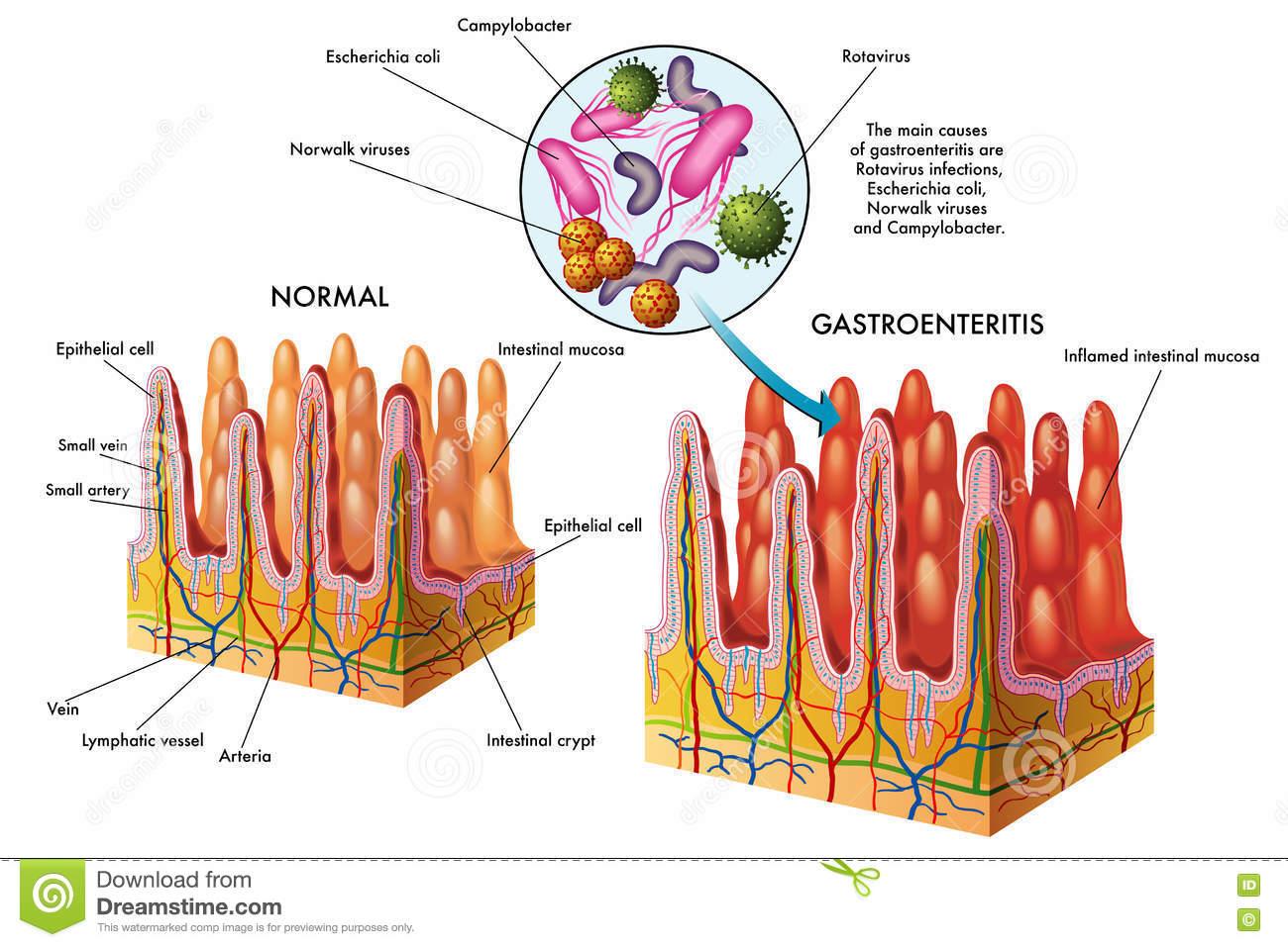 Симптомы и способы лечения хронического гастроэнтерита